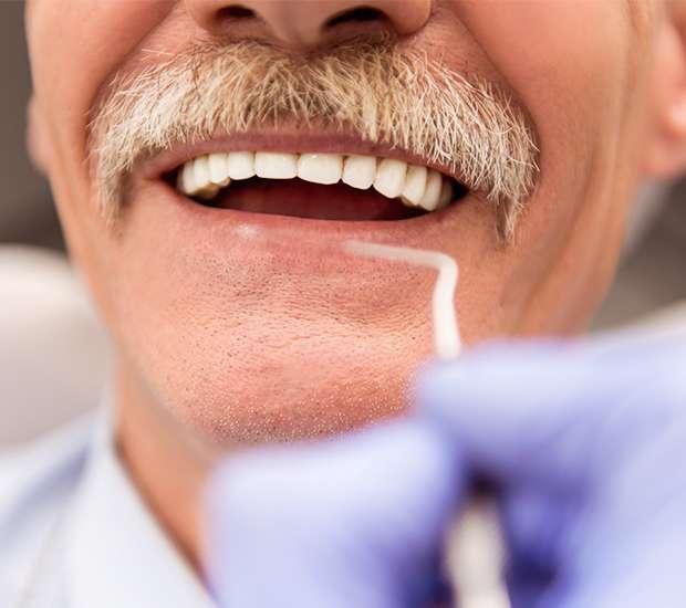 San Francisco Adjusting to New Dentures