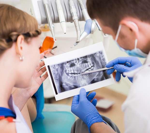 San Francisco Will I Need a Bone Graft for Dental Implants
