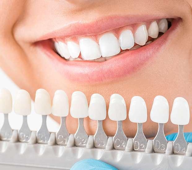 San Francisco Cosmetic Dentist