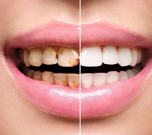 San Francisco Dental Implant Restoration