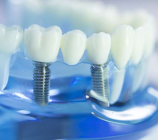 San Francisco Dental Implants