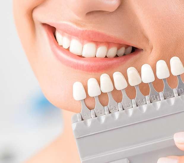 San Francisco Dental Veneers and Dental Laminates