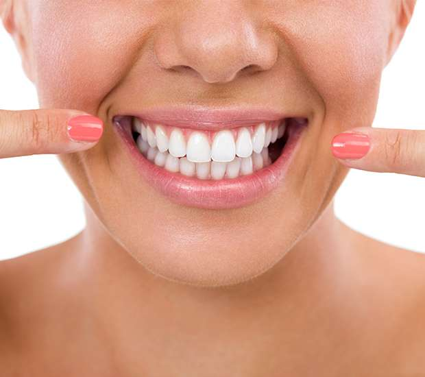 San Francisco What Is Gum Contouring & Reshaping