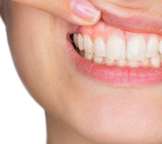 San Francisco Gum Disease