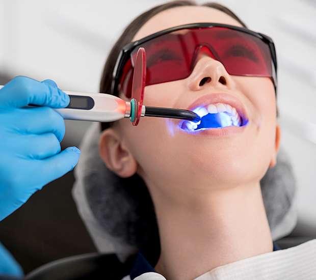 San Francisco Professional Teeth Whitening