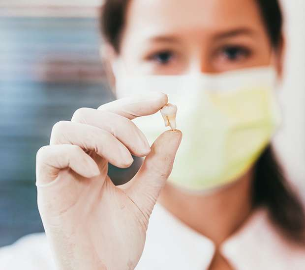 San Francisco Tooth Extraction